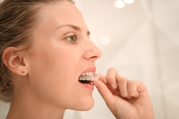 7 things you need to know about Invisalign