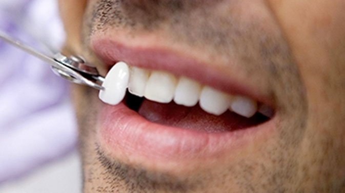 How much do Veneers cost in Dubai? We've got the lowdown!