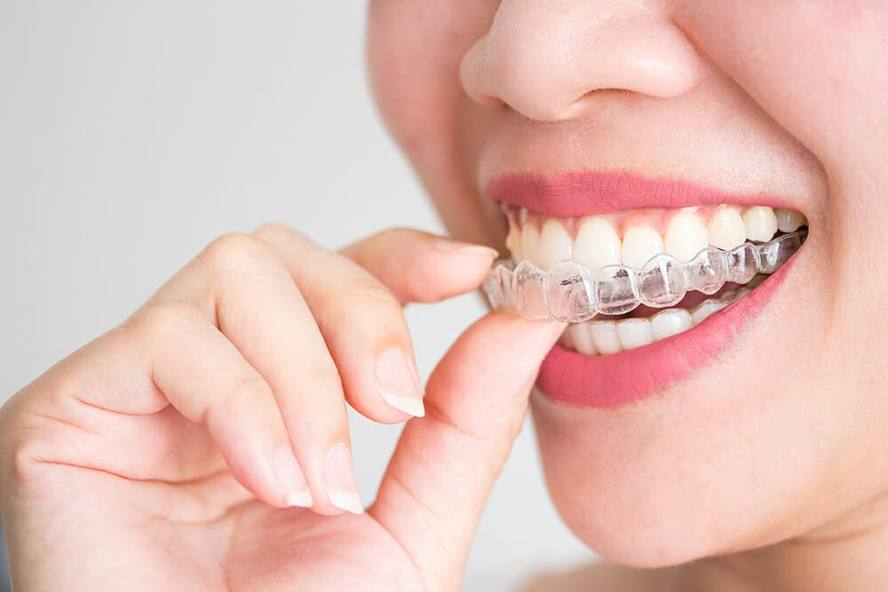 invisalign in dubai, invisalign vs metal braces, invisible braces in dubai, transparent braces