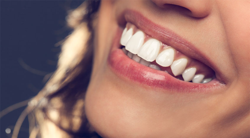 Skip the deals (& the damage): A teeth whitening guide for sensitive teeth!
